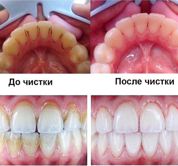 Убрать камни с зубов в домашних условиях отзывы 34