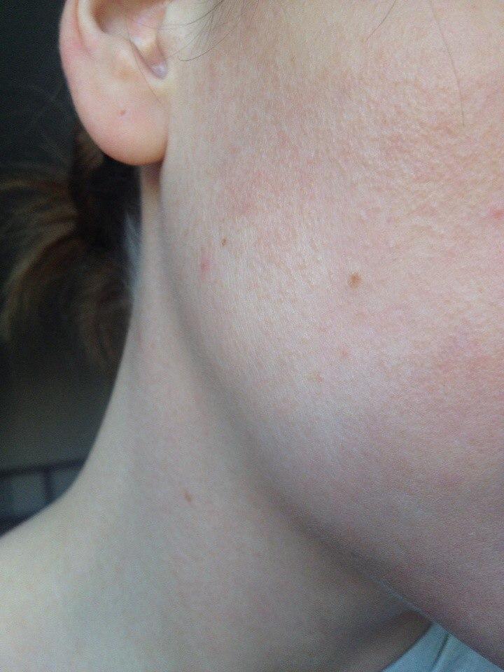 Вопросы дерматологу