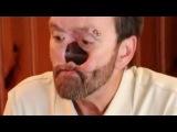 Мужчина без носа - Моя Ужасная История
