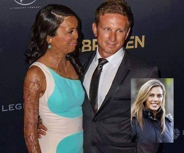 Бывшая австралийская модель Турия Питт получила 65% ожогов тела и потеряла пальц...
