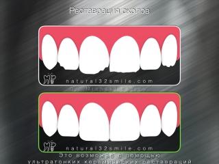 Возможности реставрации зубов с помощью индивидуальных ультратонких керамических виниров