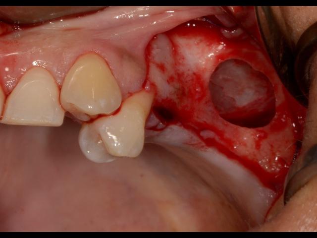 Sinus Lift Surgery-DASK Piezosurgery PRGF BioOss Bioguide. Dr Kuljeet MEHTA-Periodontist.