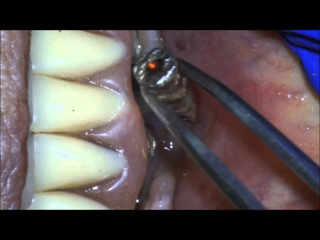 Removal of Failed dental Implant Peri-Implantitis 562 869 0928