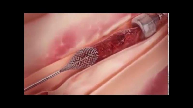 Удаление тромбов из артерии вакуумным методом