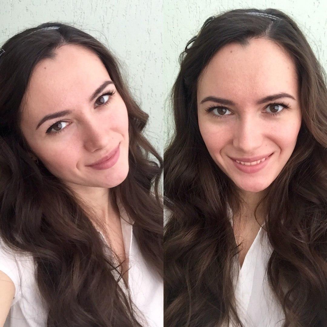 Альбина Набок - фото №4