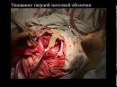 Костно-пластическая трепанация черепа (операция)