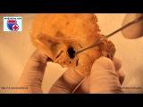 Os temporale. Нормальная анатомия височной кости - meduniver.com