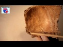 Os parietale. Нормальная анатомия теменной кости - meduniver