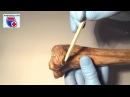 Tibia Нормальная анатомия большеберцовой кости