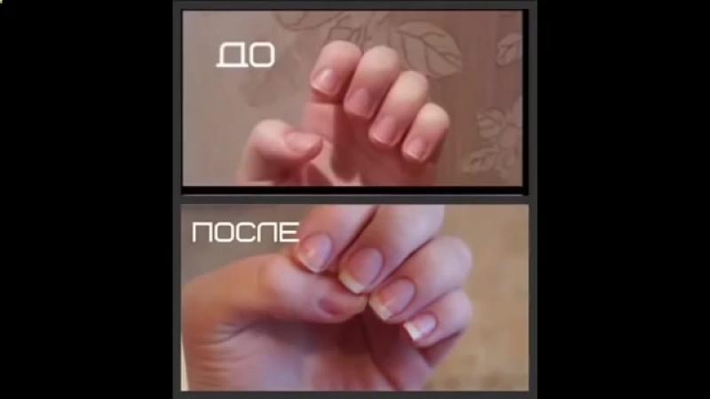 Как сделать чтобы за неделю выросли ногти