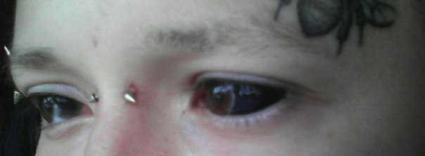 Фото залитых глах тату