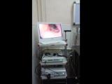 Впервые в республике Башкортостан в г. уфа. Гибкая эндоскопия. Гастроскопия в клинике доктора Кутлиматова А.Р.