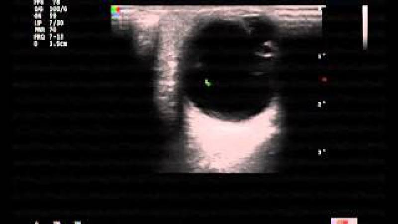УЗИ Орбит 22 11 2013 10 04