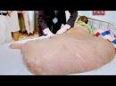 Человек с опухолью 80 кг (Моя ужасная история)