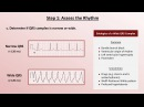 16. Intro to EKG Interpretation - A Systematic Approach
