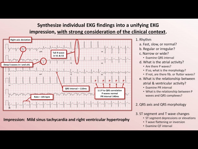 17. Intro to EKG Interpretation - The 5 Cardinal Rules