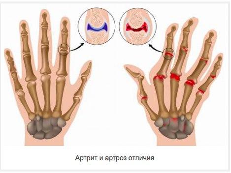 Лечение артрита челюстного сустава народными средствами