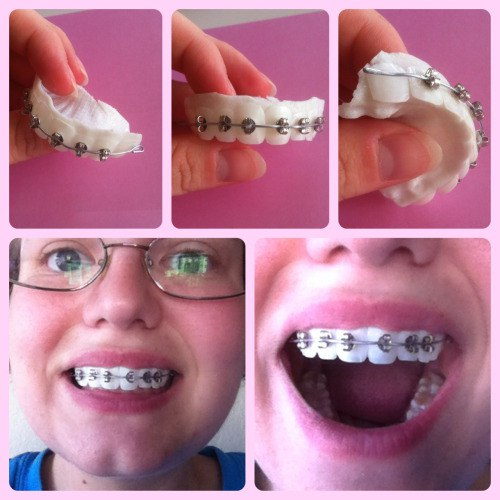 Как сделать фото для ортодонта