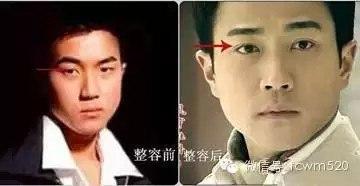 Китайские/тайваньские актеры сделавшие пластику  M9mJib4S7MU