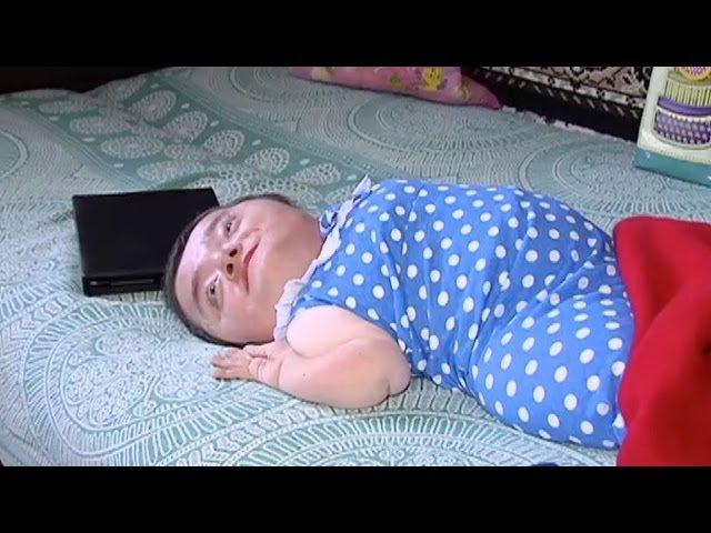 Женщина, которая живет в теле младенца! | Говорить Україна