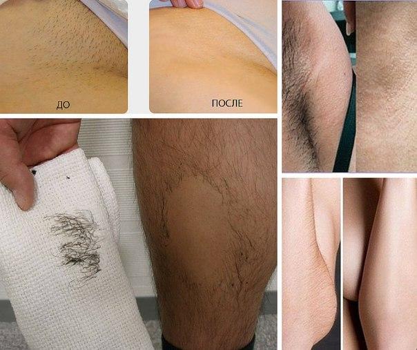 Избавиться от волос на теле навсегда в домашних условиях перекисью водорода