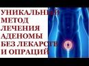 Лечение аденомы предстательной железы. Лечение аденомы предстательной железы без операции.
