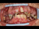 Neglected teeth reconstruction with dental implants Ankylos Friadent