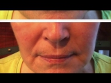 instantly ageless real pictures before after