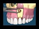 Хирургическая стоматология Удаление кисты зуба и резекция корня зуба