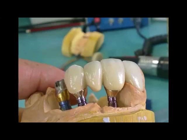 Laboratorio Dental Facil protesis sobre implantes.
