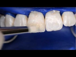 How to create an aesthetic ANTERIOR restoration using Filtek™ Supreme XTE