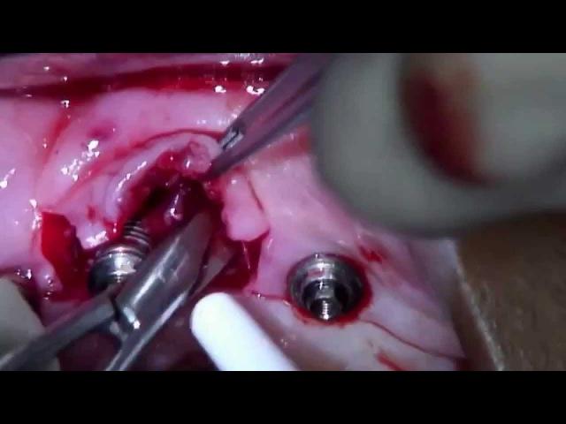 Treatment of Peri-implantitis: Access flap surgery on anterior implant