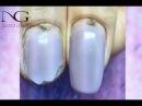 Вопрос/ответболезни, травмы ногтя в зоне кутикулы / Illness and injury near cuticle