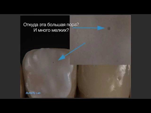 Чей это косяк? Секреты Стоматологии