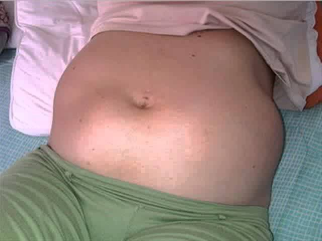 Que es un mioma uterino, fibromas submucosos,fibromas Subserosos,fibromas intramurales