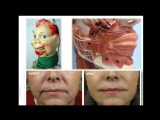 Anatomy of wrinkle lines and Botox injection sites. Анатомия.