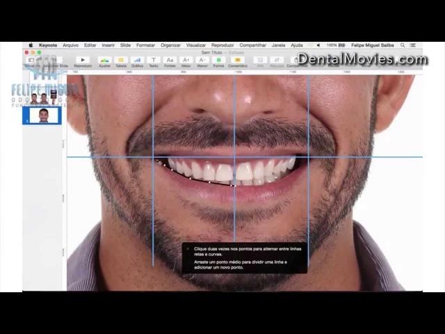 DSD - Digital Smile Design by Felipe Miguel