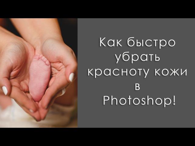 8\Как быстро убрать красноту кожи в Photoshop / How to remove the redness of the skin in Photoshop\\щш09ш