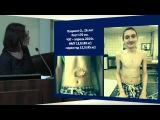 Симпозиум 8:Трансплантация легких в РФ Д.Ф.Ибрагимова, НИИ скорой помощи им. Н.В. Склифосовского