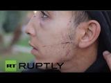 Греция: Рассказы о насилие собак центра Афин беженцев с полицией задержания 100 мигрантов.