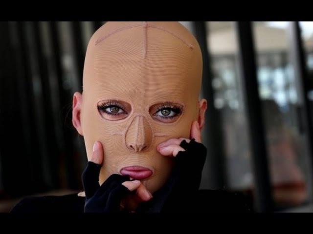 Жизнь без лица закончена:австралийка сняла маску, которую носила 2,5 года