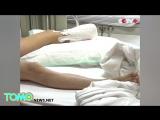 Ногу уборщика оторвало в очередном инциденте с эскалатором