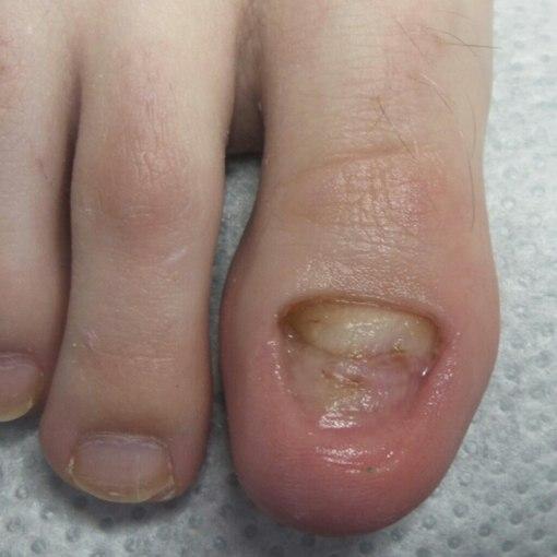 Грибок ногтей на руках лечение препараты эффективные