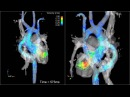 Whole heart 4D flow MRI - 3D blood flow visualization in a patient with aortic bypass