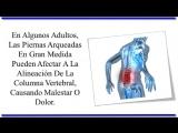 Ejercicios Para Rodillas Valgas, Como Enderezar Piernas, Rodilla En X, Piernas Derechas