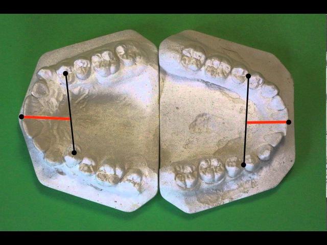 Биометрическое изучение (антропометрия) моделей челюстей в период постоянного прикуса