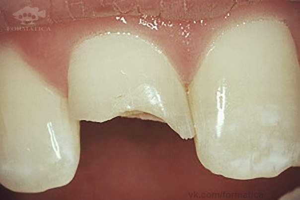 Сонник сломала зуб с кровью
