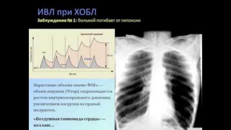 Респираторная поддержка при ХОБЛ (кИВЛ14дек) Кузьков В. В.