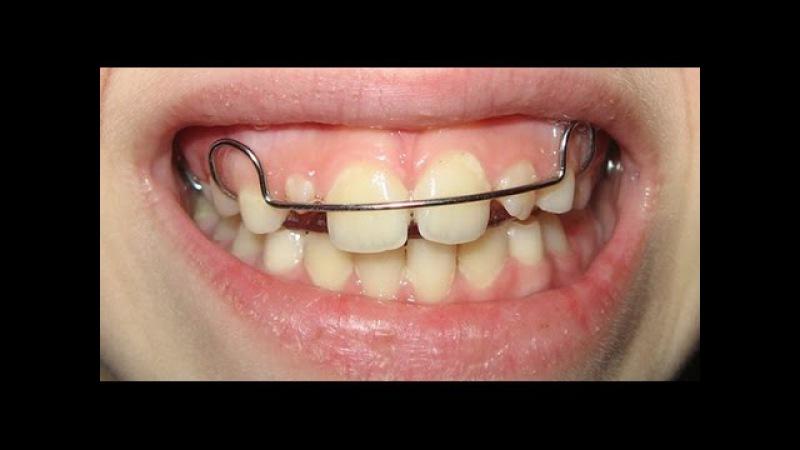Ортодонтическая пластинка - исправление прикуса ребенка