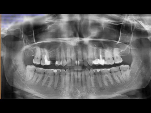 5. Секреты стоматологии с доктором Самвелом Блеяном